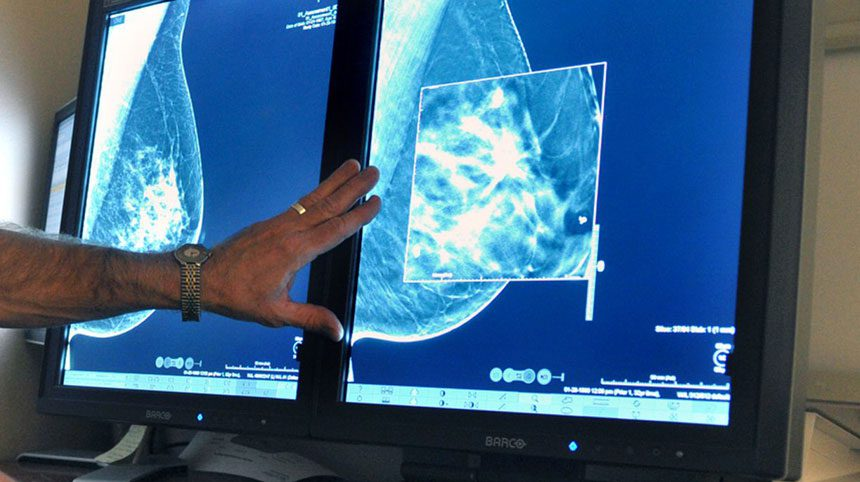 Certain Hispanic women more likely to die of breast cancer than others
